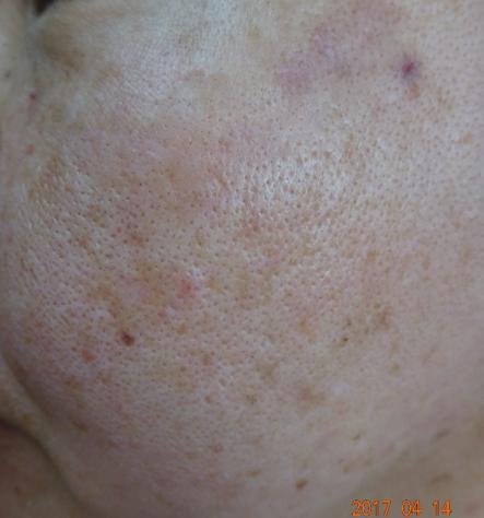 しみの治療2週間後の写真