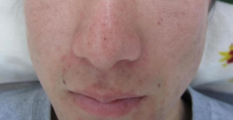ニキビ治療7日後の写真